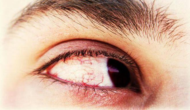 Звездочки в глазах - что это, причины и симптомы