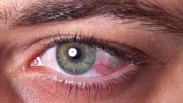 Конъюнктивит от линз: первая помощь при воспалении
