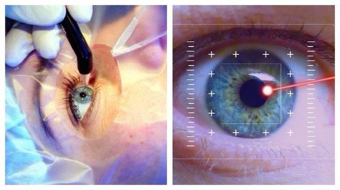 Ограничения после лазерной коррекции зрения