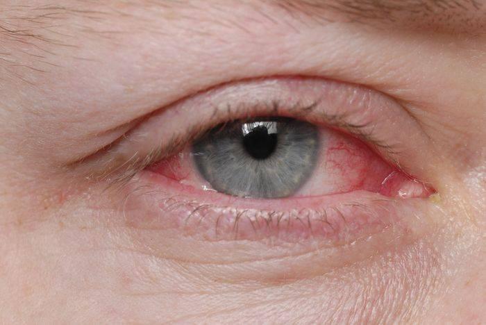 Красные глаза: как избавиться от покраснения при помощи простых домашних средств