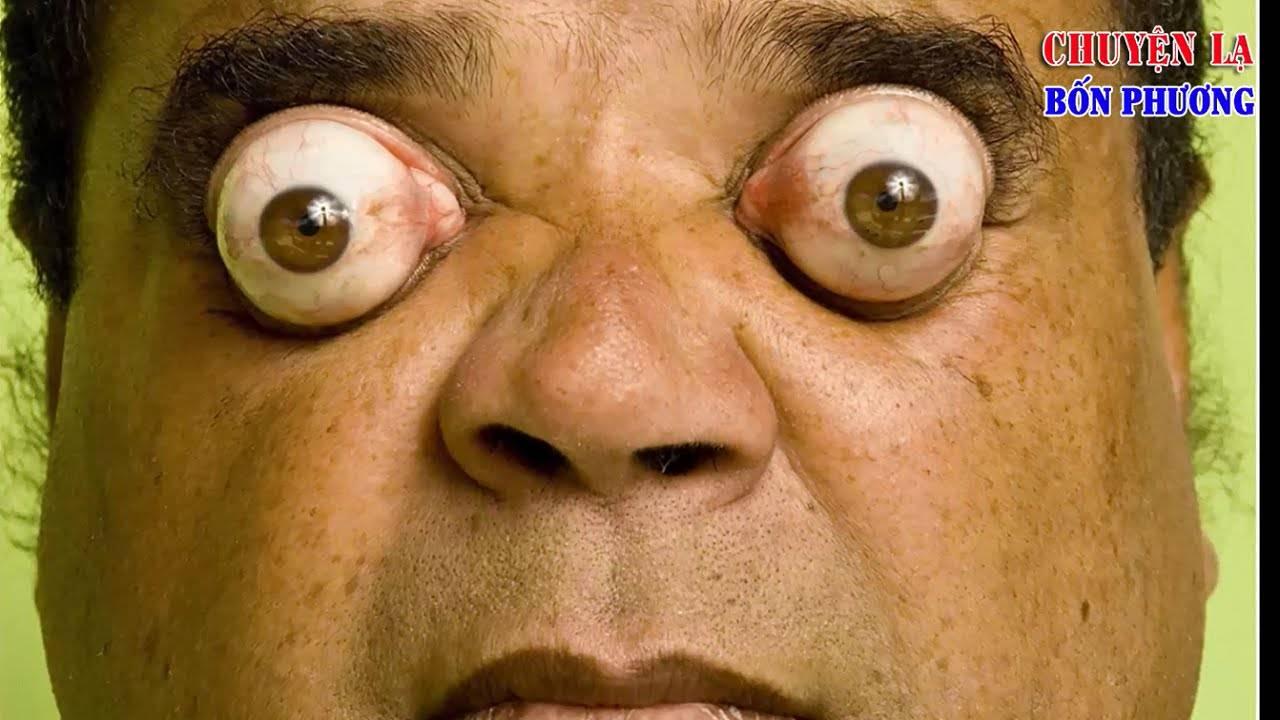 Пучеглазие (экзофтальм), выпученные глаза - причины, лечение