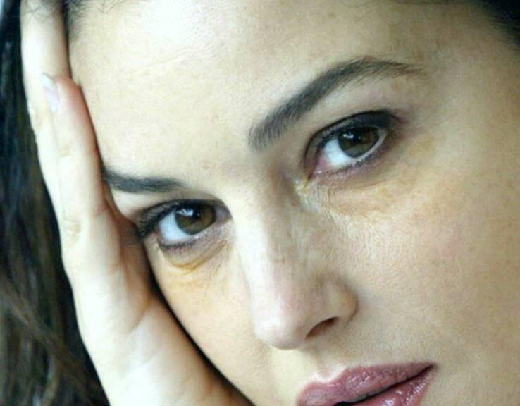 Желтые круги под глазами причины у женщин. отчего появляется жёлтая кожа вокруг глаз | школа красоты