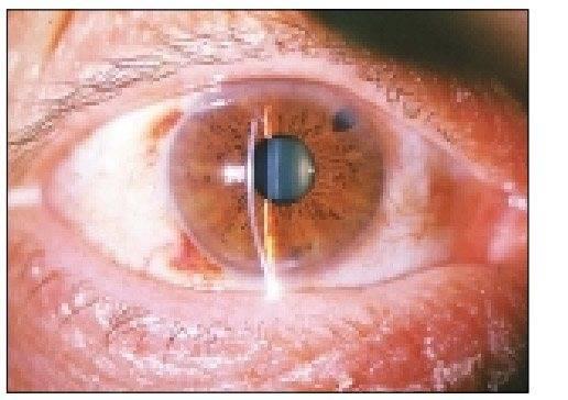 Операция при отслоении сетчатки глаза - проведение хирургического вмешательства, что нельзя делать после лечения лазером
