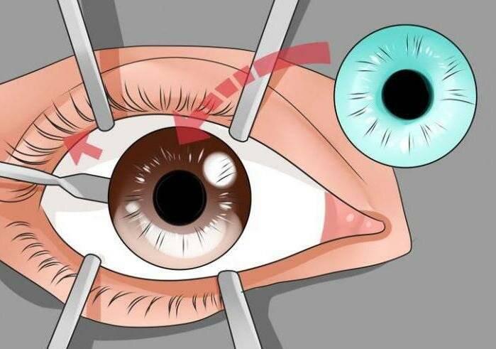 Операция при глаукоме: способы проведения и реабилитация
