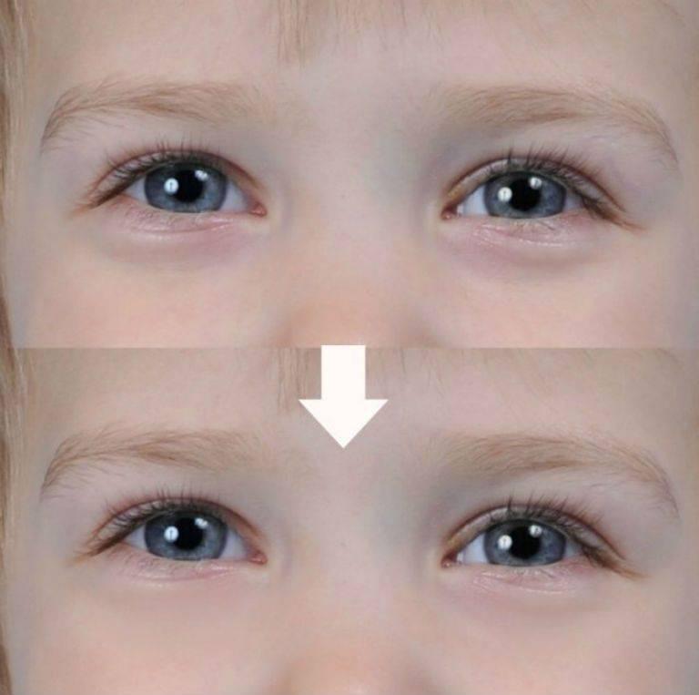 Синяки под глазами у грудничка: причины, почему бывают синие круги у младенца