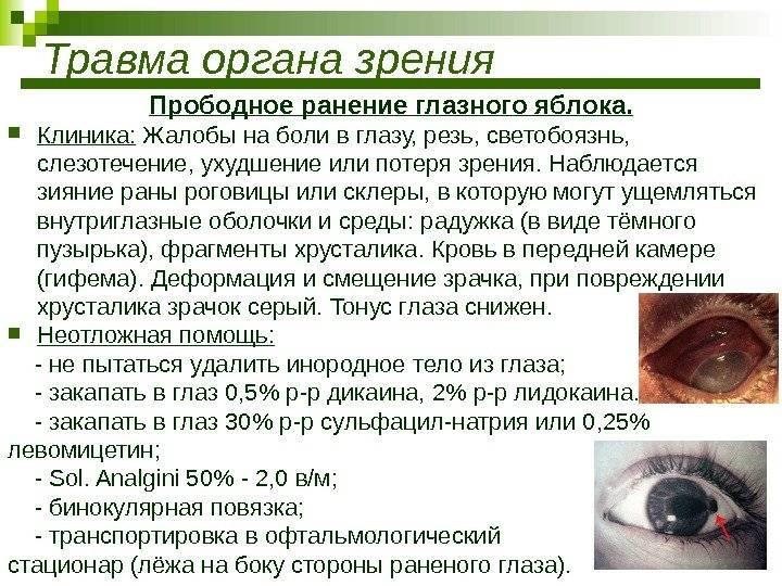 Все о травмах глаз и лечении