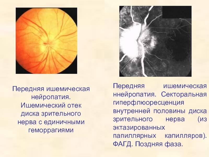Ишемическая нейропатия зрительного нерва: симптомы, лечение oculistic.ru ишемическая нейропатия зрительного нерва: симптомы, лечение