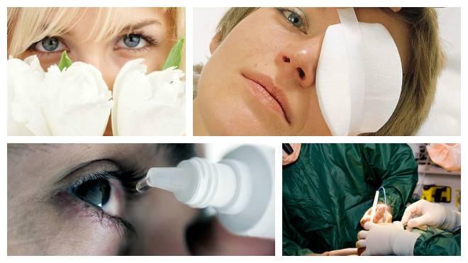 Как предотвратить ячмень на глазу на ранней стадии