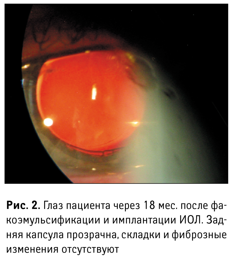 Вторичная катаракта после замены хрусталика: причины и лечение, симптомы