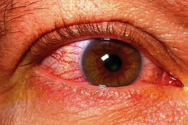 Ангиопатия сетчатки обоих глаз: причины, симптомы и лечение - sammedic.ru