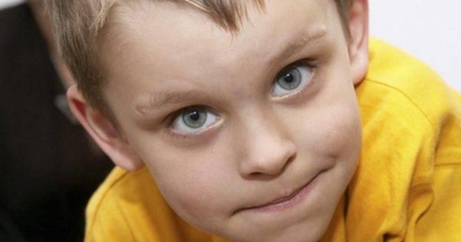 Синяки под глазами у ребёнка: причины, почему появляются круги