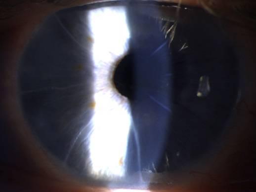 Упало зрение после лазерной коррекции
