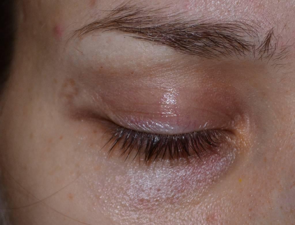 Темные круги под глазами, причины болезни у женщины