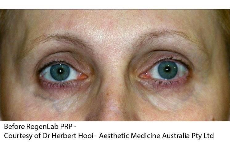 Рак сетчатки глаза: лечение детей и взрослых, симптомы, признаки