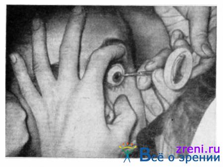 Что делать при ощущении в глазу инородного тела и о чем оно говорит?