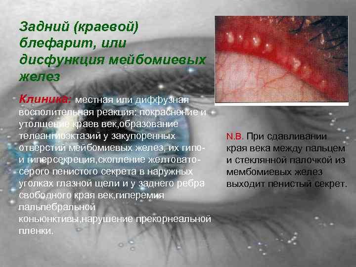 Блефарит симптомы и лечение фото