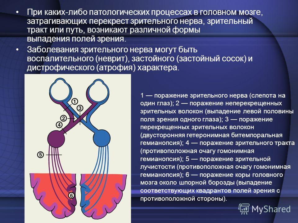 Гомонимная гемианопсия причины симптомы лечение - мед портал tvoiamedkarta.ru