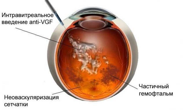 Гемофтальм глаза - что это, причины и лечение