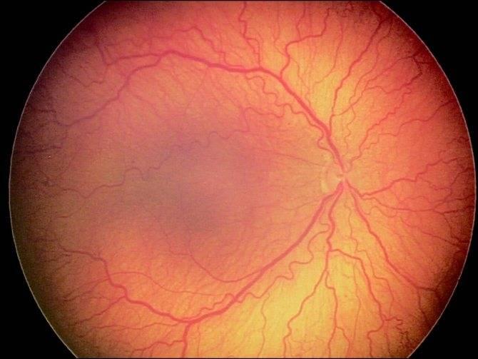 Ангиопатия сетчатки глаза: юношеская,гипотоническая,диабетическаяи гипертоническая, причины, симптомы, лечение, у детей