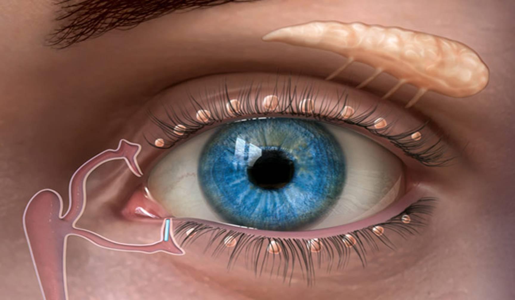 Пленка на глазу у человека - стадии развития птеригиума, причины проблемы,  другие внутренние причины