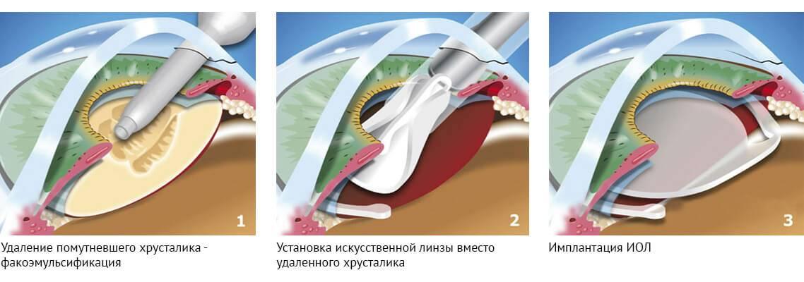 """Операция при катаракте: основные методики - """"здоровое око"""""""