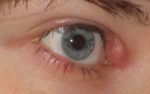 Заразен ли ячмень на глазу или нет: для окружающих