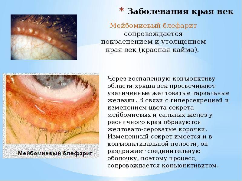Блефарит: симптомы и лечение. виды блефарита