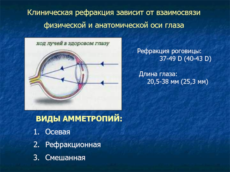 Виды рефракции глаза и особенности рефрактометрии