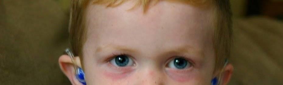 Почему у детей появляются синяки под глазами и что с этим делать