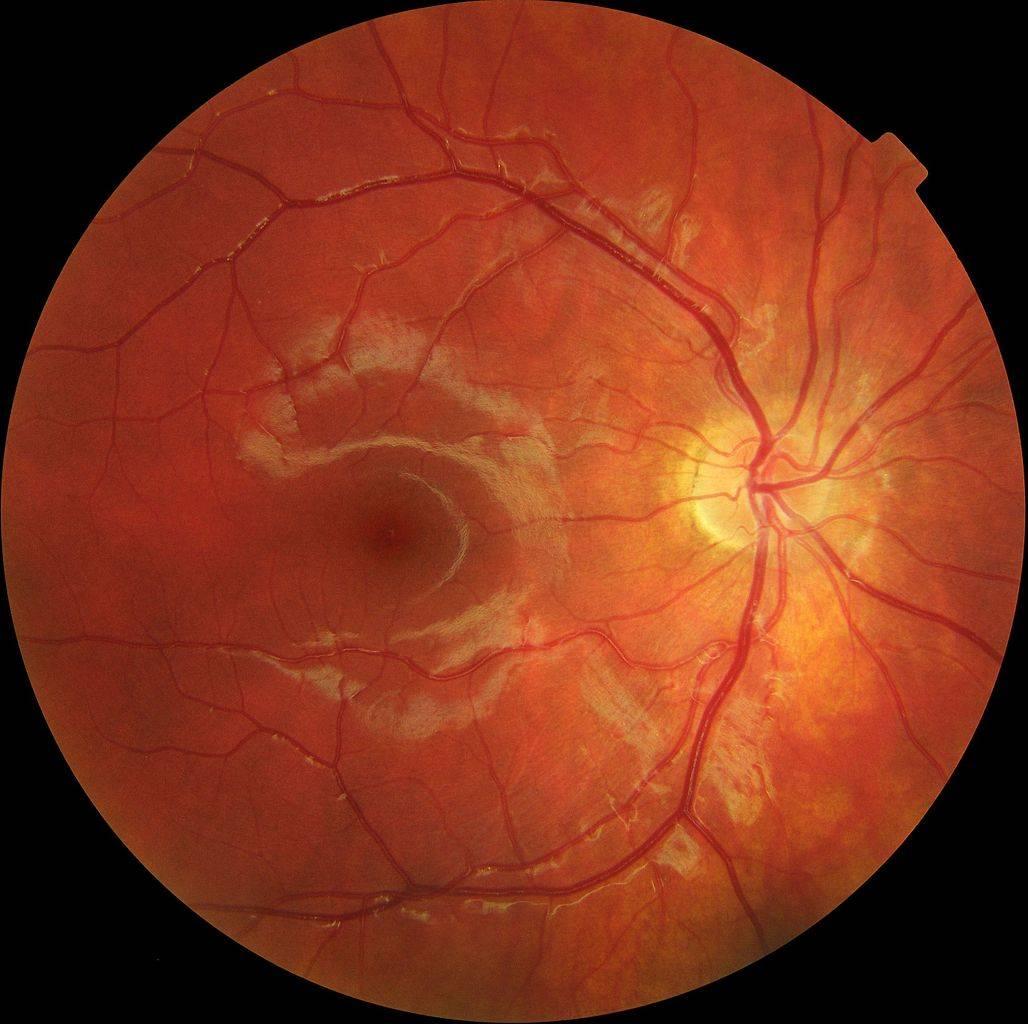 Колобома радужки глаза: что это такое, симптомы, причины, лечение, виды (врожденная, приобретенная), диагностика, фото