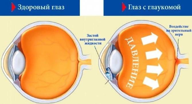 Что нельзя делать при глаукоме глаза