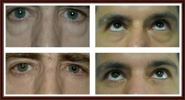 Мешки под глазами у мужчин: причины и лечение oculistic.ru мешки под глазами у мужчин: причины и лечение