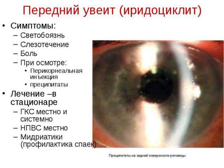Лечение катаракты без операции – правда или миф?
