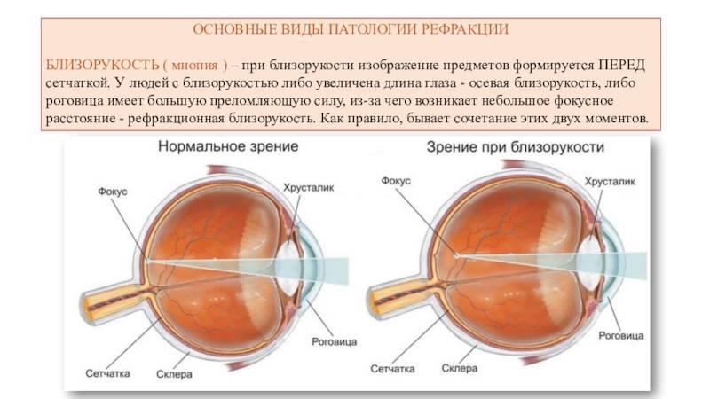 Замена хрусталика при близорукости: показания и противопоказания операции