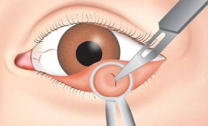 Операция по удалению халязиона и после операции: фото и видео операции