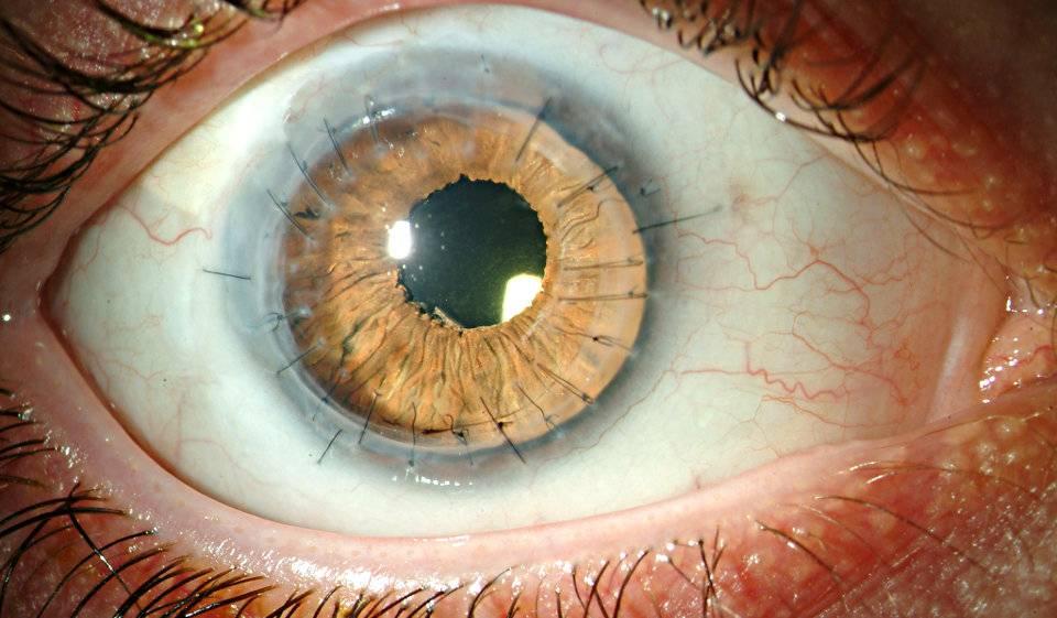 Что такое склеральные контактные линзы и для чего они применяются