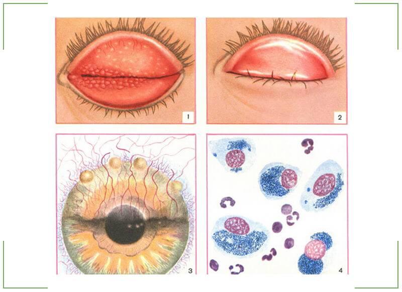 Трахома глаз - что это, лечение, причины и симптомы, фото