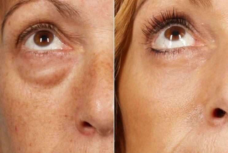 Как избавиться от грыжи под глазами без операции и хирургическим путем