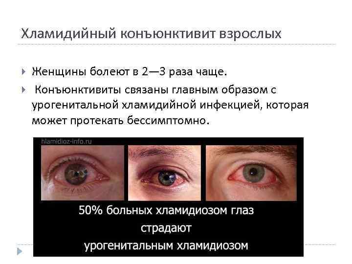 Хламидийная инфекция глаз, признаки и лечение
