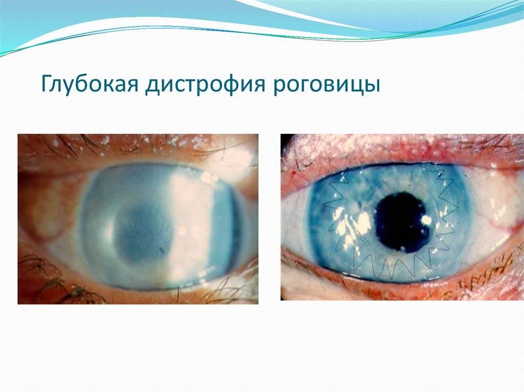 Дистрофия роговицы глаза: лечение, симптомы, причины, осложнения, профилактика и дистрофия роговицы у собак