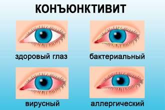 Болят глаза при простуде: причины, лечение oculistic.ru