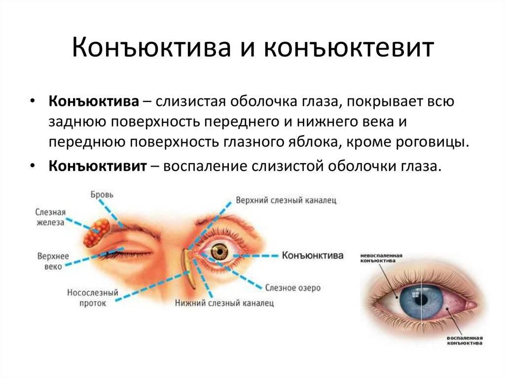 Конъюнктивальный мешок глаза: где находится нижняя и верхняя полость, фото, функции
