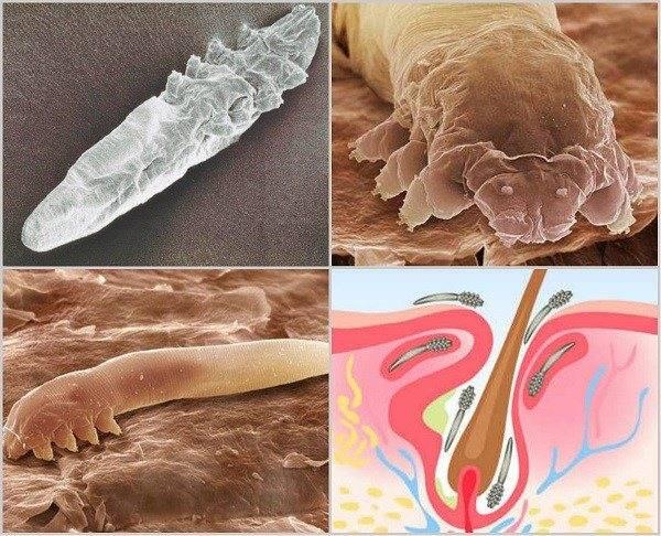 О ресничном клеще у человека: симптомы и лечение, как избавиться от паразита