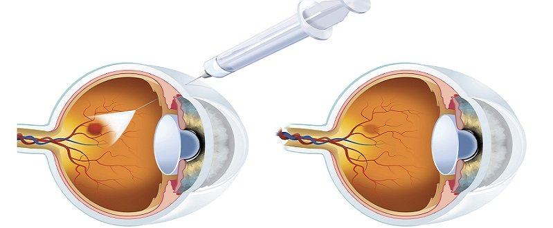 Уколы в глаза: при каких патологиях необходимо проводить манипуляции