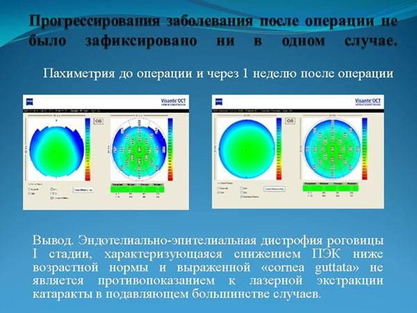 Пахиметрия роговицы глаза: описание, виды, методика проведения и расшифровка результатов