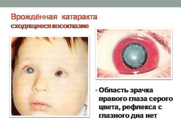 Причины возникновения врожденной катаракты у детей
