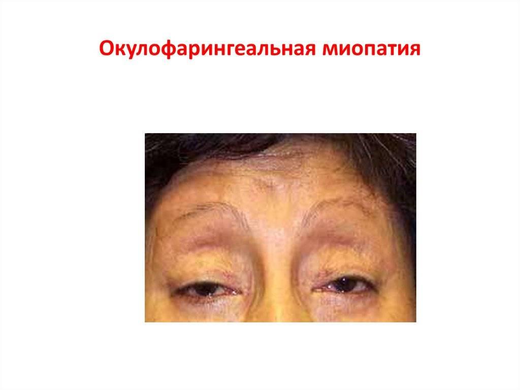 Миопатия - симптомы и лечение, фото и видео
