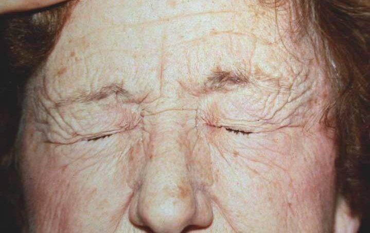 Блефароспазм: лечение ботоксом и хирургически, причины, симптомы, виды (эссенциальный, идиопатический, неврологический), диагностика, профилактика подергивания веком