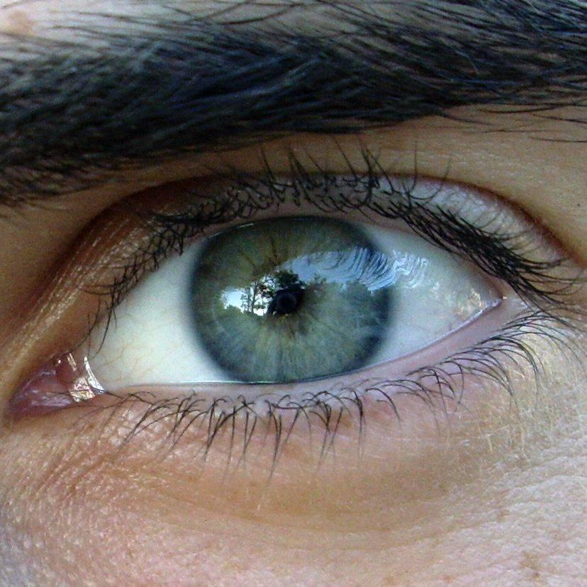 Могут ли карие глаза стать зелеными