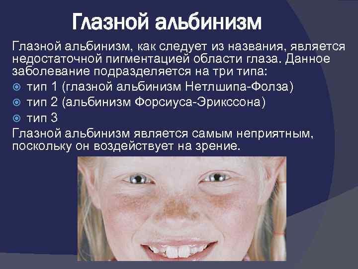 Глазной альбинизм у человека: что это такое, причины возникновения